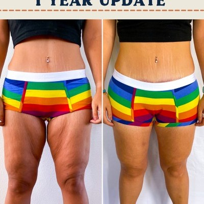 Thighplasty and Posterior Lift 1 Year Update