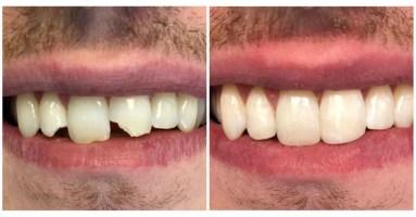 ZachLink-Teeth.jpg