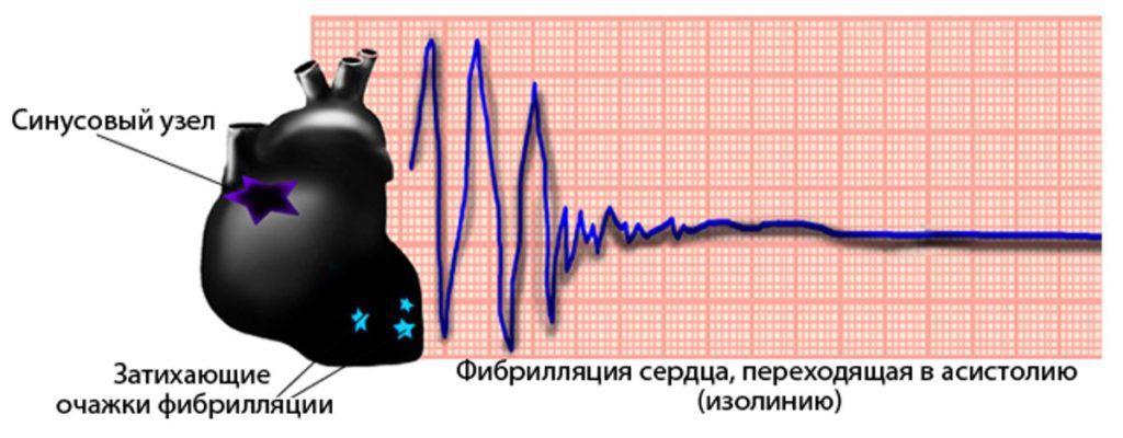 심장의 세동