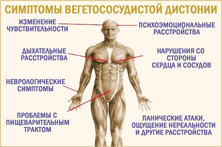 Symptome von vegetativem Dystonien