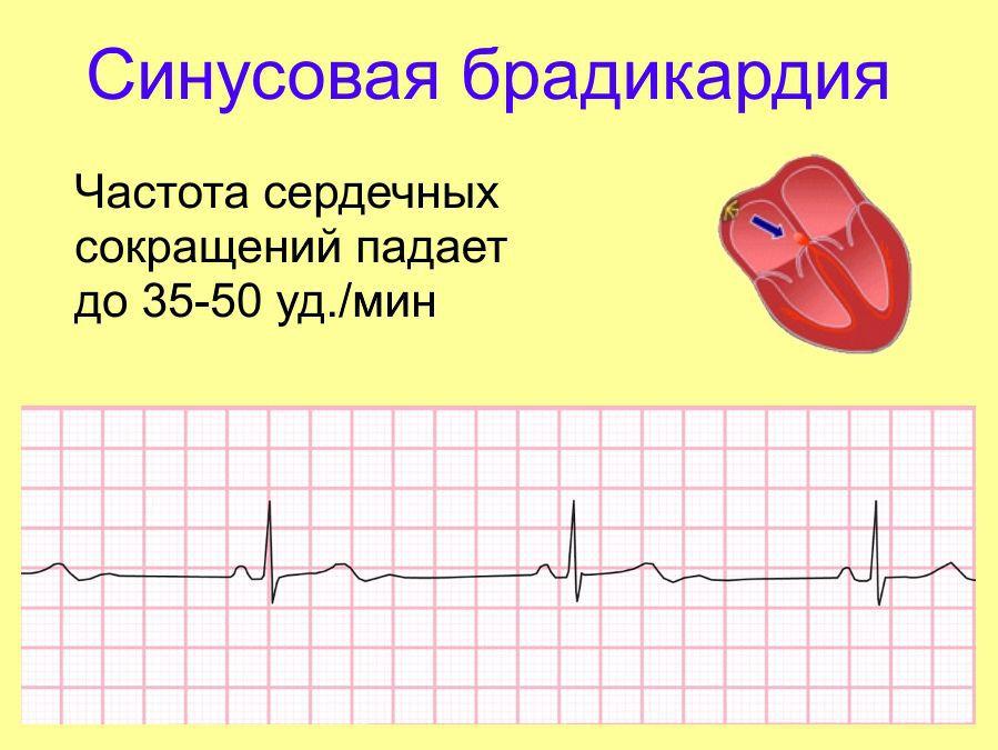 ไซนัสหัวใจเต้นช้า