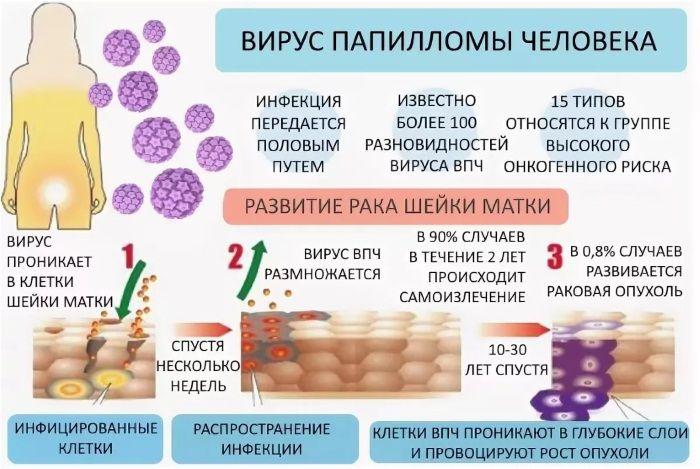 Lidsky papillomavirus