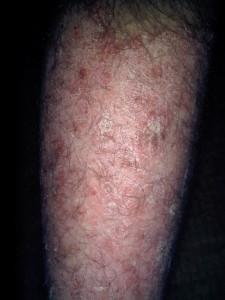 psoriasis-picture-2