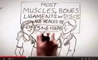 Ilustración del Vídeo explicativo sobre Dolor Crónico Fuente: Sociedad Española del Dolor SED