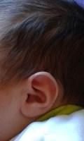 Oído infantil