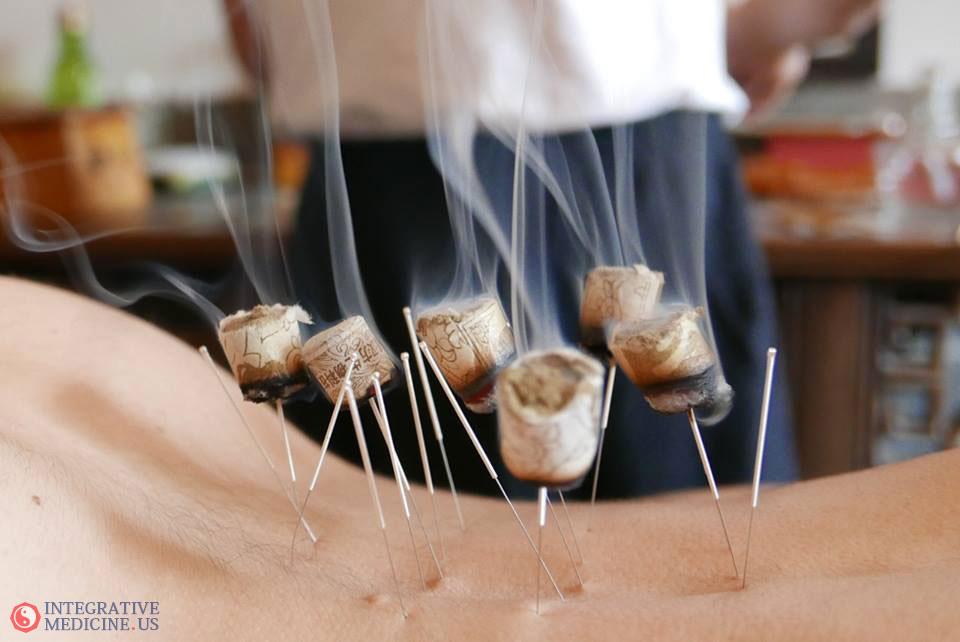 Acupuncture Parkland