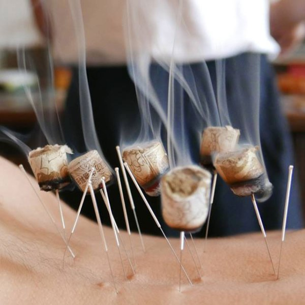 Acupuncture Parkland