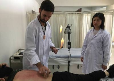 Tamarac Acupuncturist Cupping in Chinese Hospital