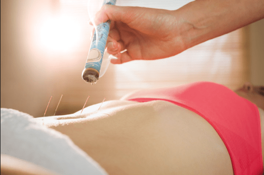Acupuncture in Coral Springs for Arthrits