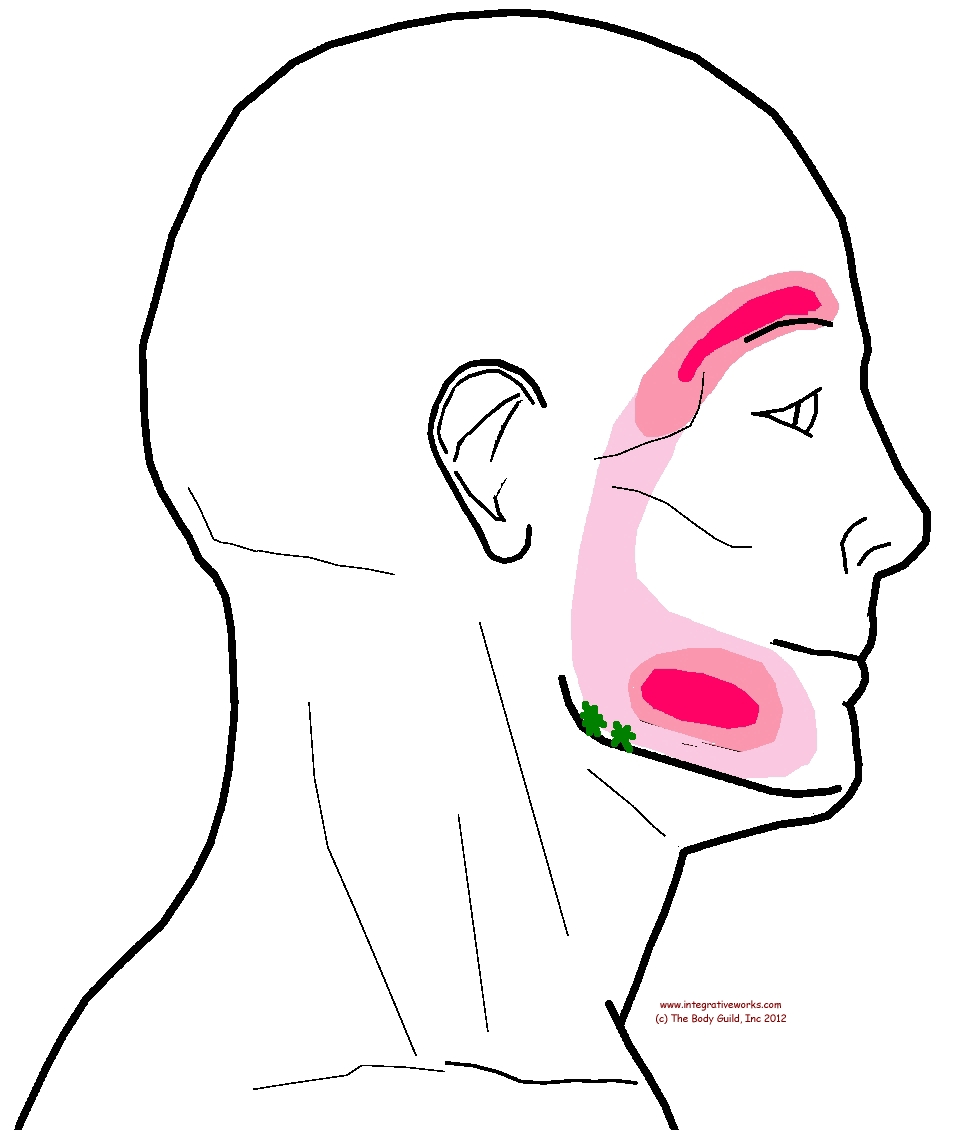 Trigger Points Headache In The Eyebrow Integrative Works