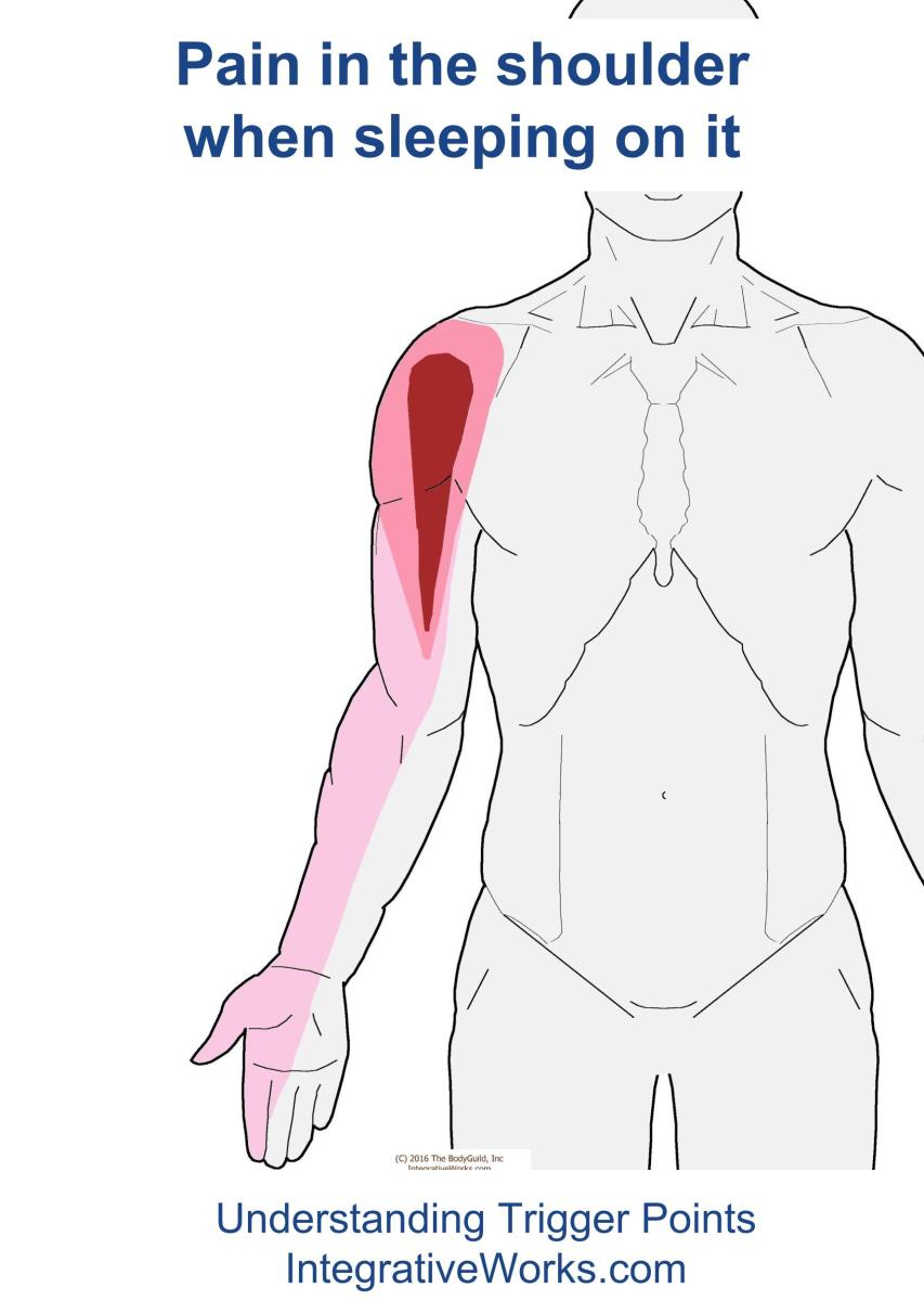 Understanding Trigger Points - Shoulder pain when sleeping on your side