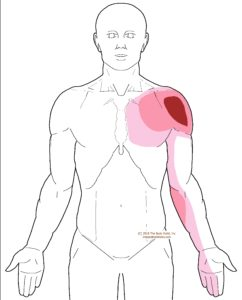 referral - pectoralis minor