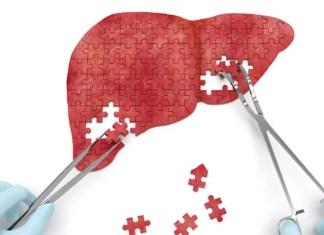 Karaciğer Yetmezliğini Önlemenin 5 Yolu