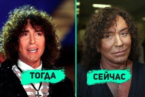 Валерий Леонтьев До И После Пластики Фото