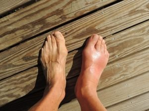 Feet Gout - End of Gout