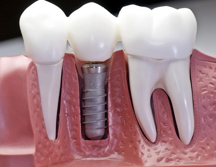 Dantų protezavimas išsprendžia ne vieną problemą