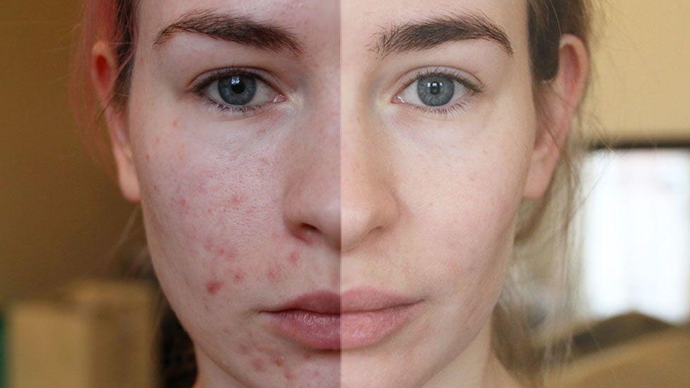 95123192 memyspotsandihalfandhalf - Lack of skin specialists causes delays for acne patients, says dermatologist