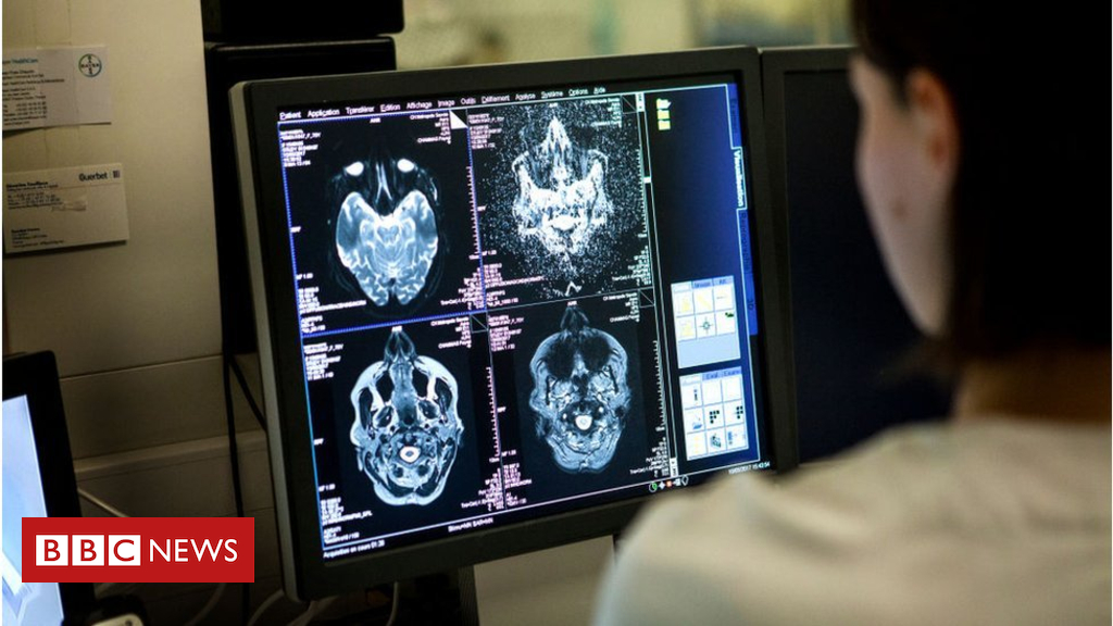 102475714 gettyimages 925864062 - Alcohol-related brain damage at 10-year high