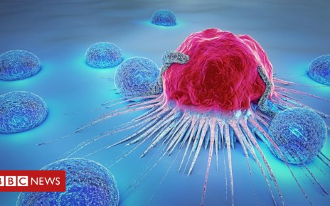 103255431 gettyimages 888730408 - Artificial intelligence used to predict cancer growth