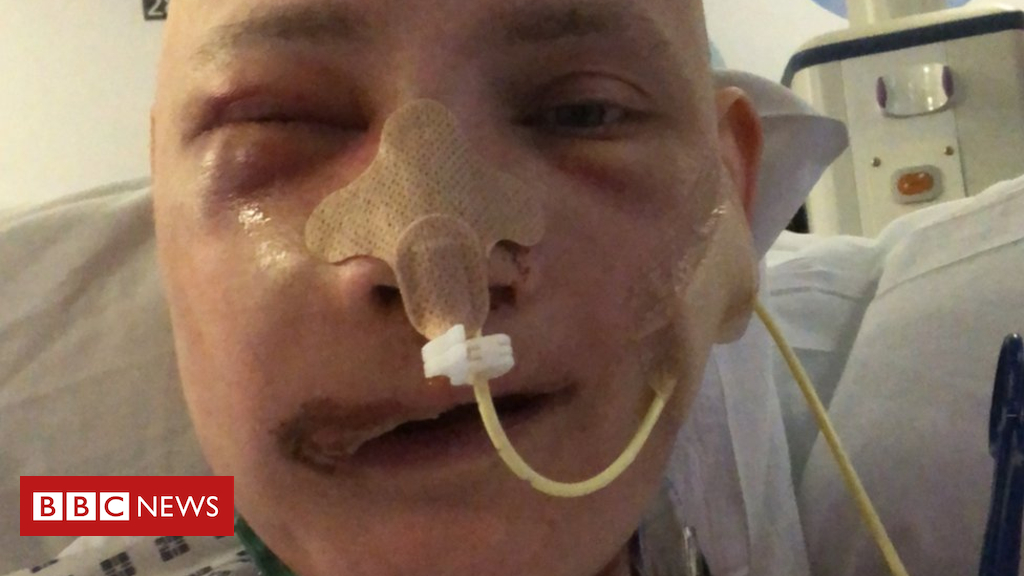 103604611 1 - 'Facial reconstruction changed my life'
