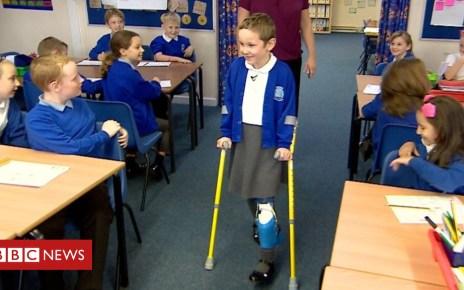 103918692 p06p679x - Girl, 8, walks into school on new prosthetic leg