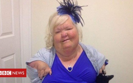 104344796 70a0f9d9 b397 443d 8353 3ed3f6ca25b9 - Tributes paid to Thalidomide campaigner Louise Medus-Mansell