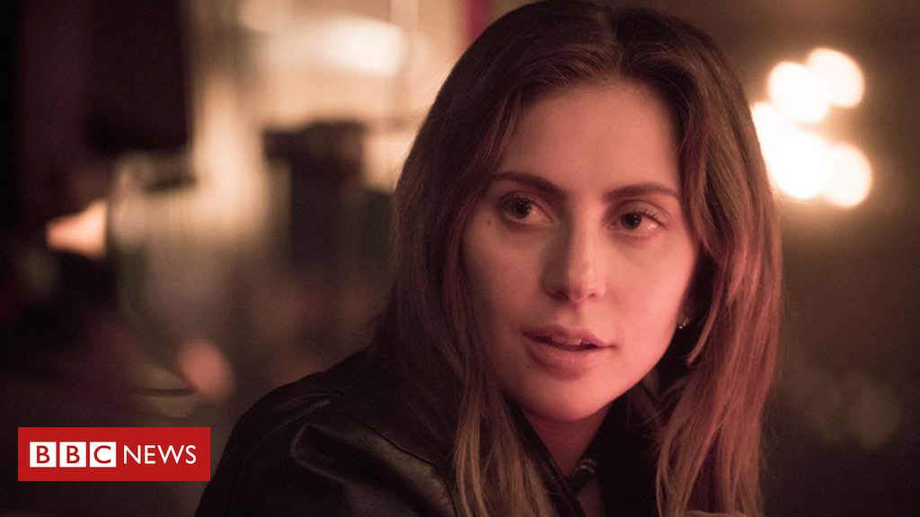 104645212 gaga2 fox - Lady Gaga up for best actress Golden Globe