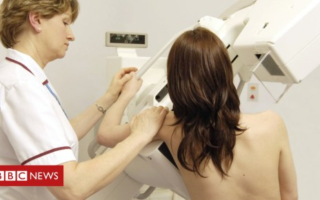 105322980 m4150561 mammography spl - 'High' survival for many cancers diagnosed at stages 1-3