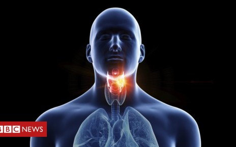 105373393 f0236471 illustration of a man s larynx cancer spl - Persistent sore throat 'can be cancer sign'