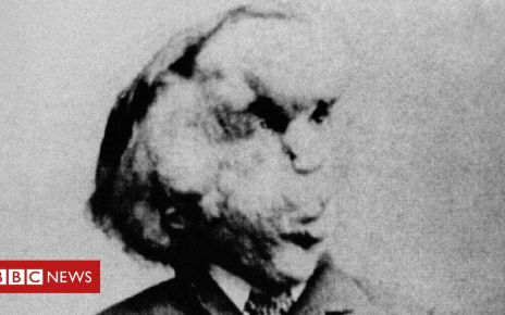 106786544 elephant man - Elephant Man: Joseph Merrick's grave 'found by author'
