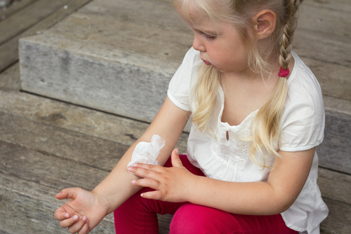 eczema tips for families