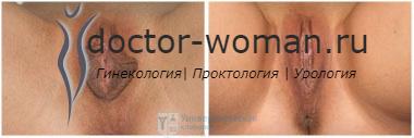 Фото до и после лабиопластики