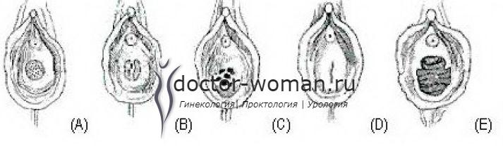 A, B и C показывают нормальную девственную плеву - мембрану, которая частично закрывает отверстие. D показывает девственную плеву, которая полностью закрывает влагалище. E показывает влагалище женщины, которая родила.