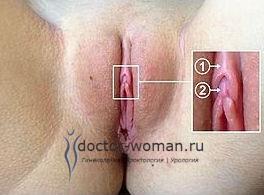Виды женского клитора фото