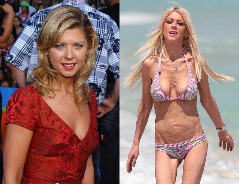 ради чего женщины увеличивают грудь