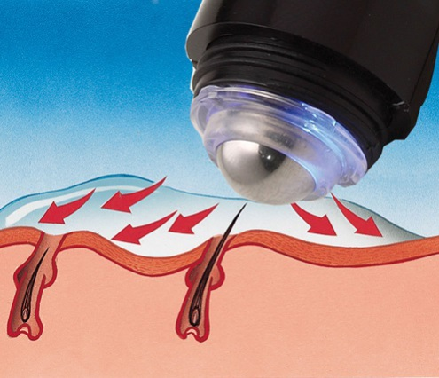 Pinchless Electrolysis Hair Remover removes hair from the root: image via hammacherschlemmer.com
