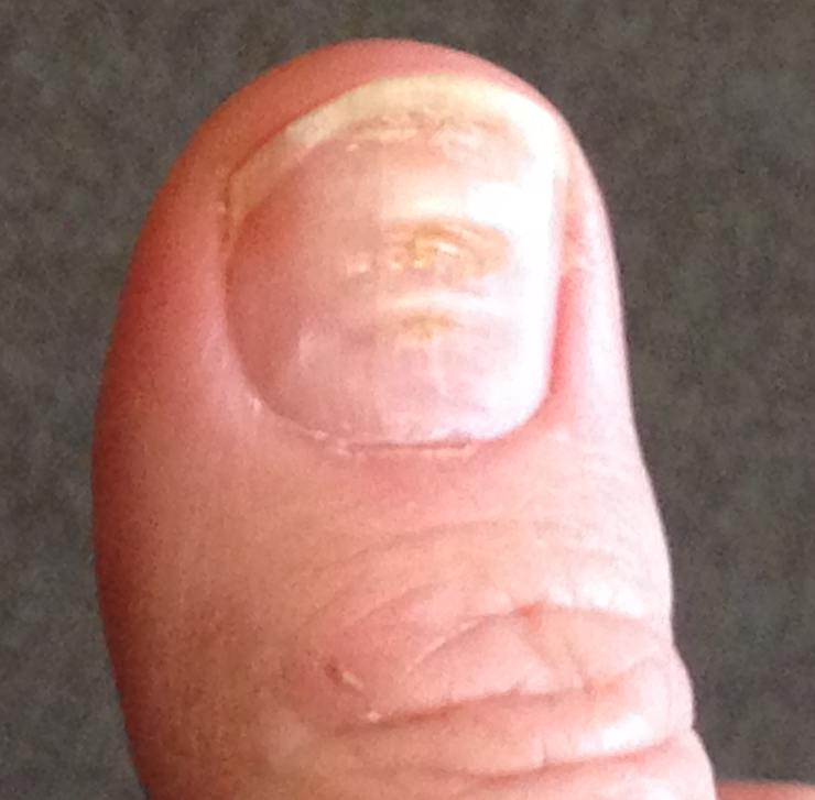 A thumb with Beau's lines