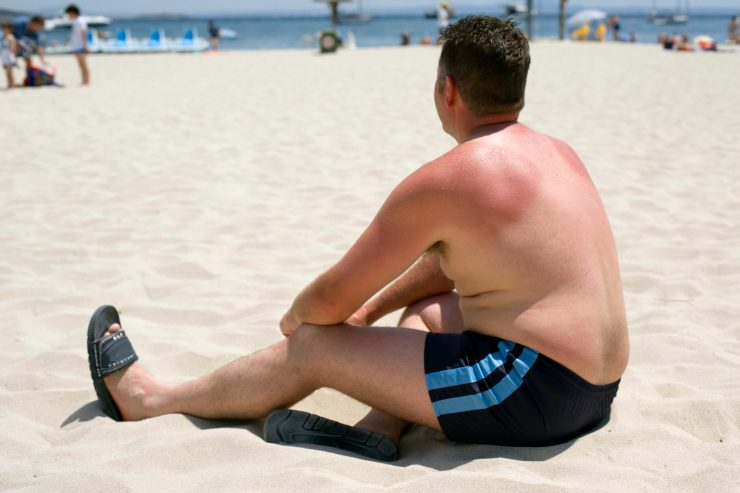 A man with sunburned shoulders sitting on a beach.