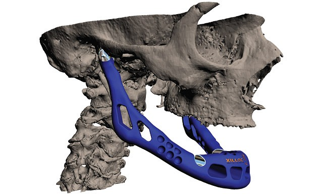 3D printing of bones can reduce hospital costs