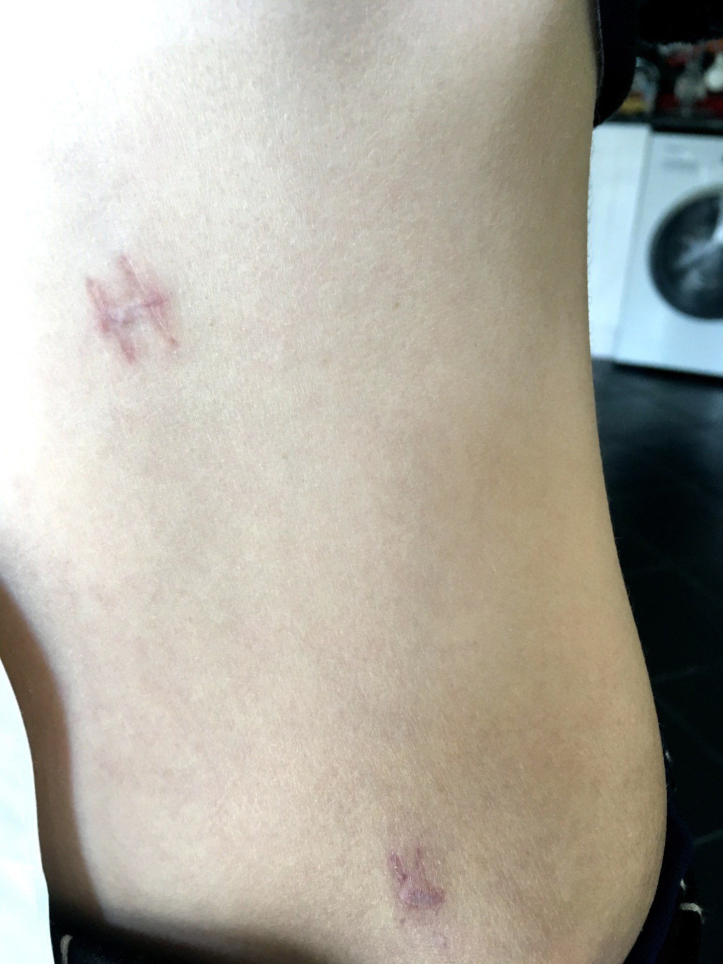 A photo of my abdomen showing the side of my bag and the scars from my EUA procedure. The scars appear to look like the letter H at the top and lower down the letter L.