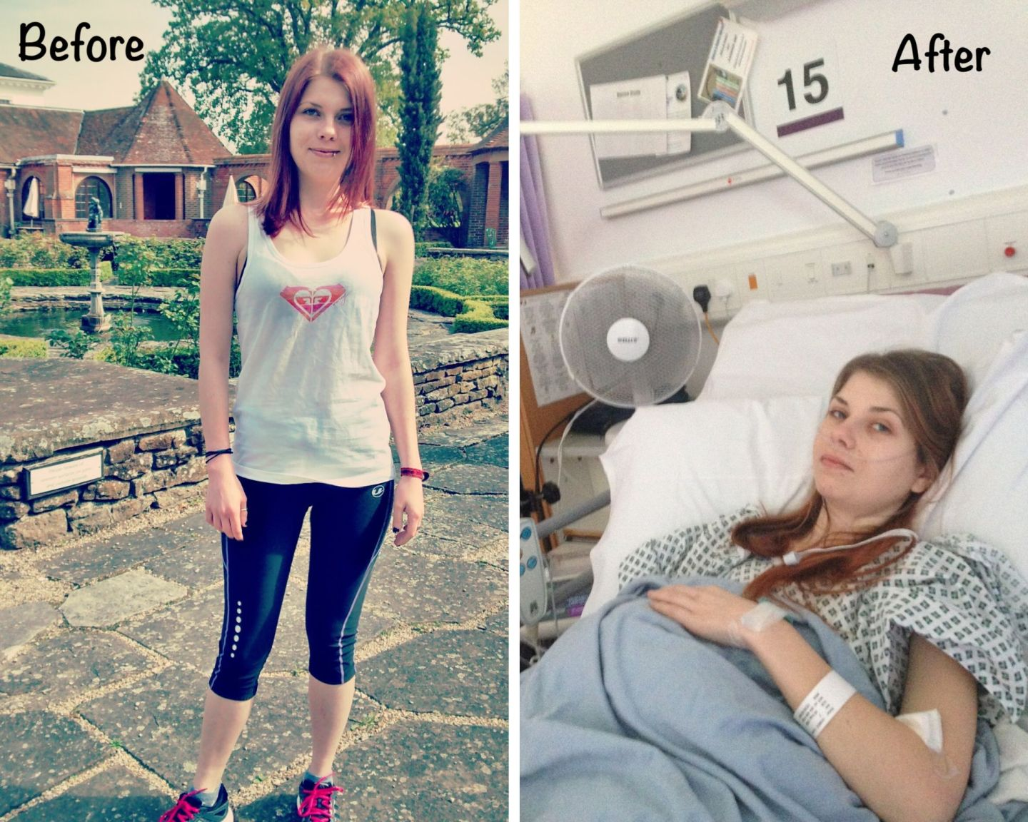 A collage with two photos. To the left is a photo of me from years ago, before the 2015 surgery, out on a run in my running gear. The second on the right is me in hospital poorly.