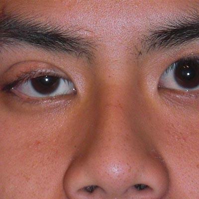 Ptosis palpebral. Enfermedades y tratamientos para los problemas oculares por el Instituto Oftalmológico Recoletas.