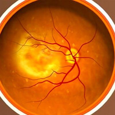 Degeneración Macular Asociada a la Edad. Enfermedades y tratamientos para los problemas oculares por el Instituto Oftalmológico Recoletas.