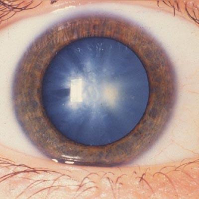 Catarata congénita. Enfermedades y tratamientos para los problemas oculares por el Instituto Oftalmológico Recoletas.