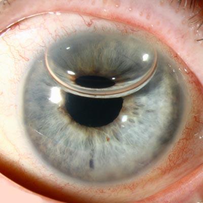 DMEK. Enfermedades y tratamientos para los problemas oculares por el Instituto Oftalmológico Recoletas.