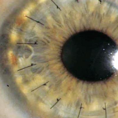 Transplante de córnea. Enfermedades y tratamientos para los problemas oculares por el Instituto Oftalmológico Recoletas.