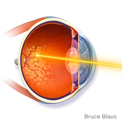 Fotocoagulación láser. Enfermedades y tratamientos oculares que se tratan en el Instituto Oftalmológico Recoletas.