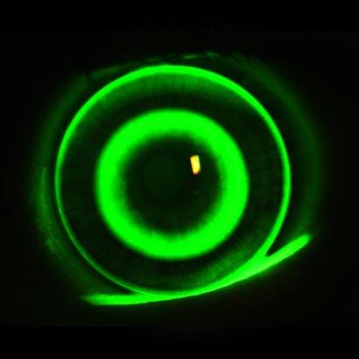 Ortoqueratología Enfermedades y tratamientos para los problemas oculares por el Instituto Oftalmológico Recoletas.
