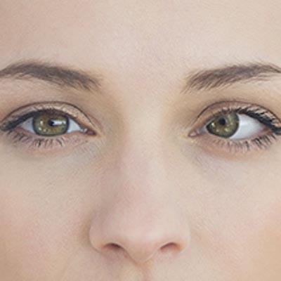 Estrabismo del adulto. Enfermedades y tratamientos oculares que se tratan en el Instituto Oftalmológico Recoletas.