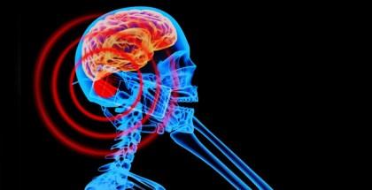 móviles y tumores cerebrales